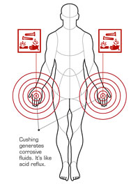 AT diagram Cushing.jpg